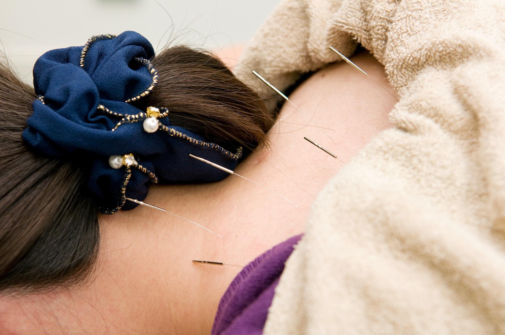 肩こり治療 の種類とそれぞれの特徴