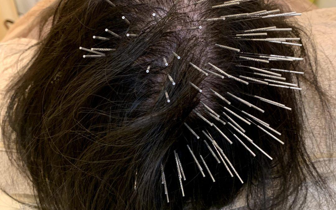 薄毛に鍼 が効果的! 鍼治療で育毛