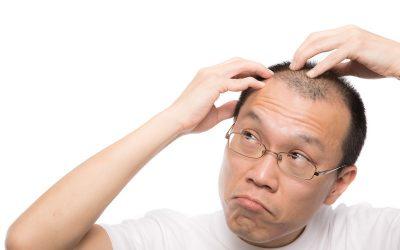 薄毛の原因 AGAについてと簡単チェック方法